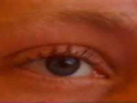 Young Boy eye